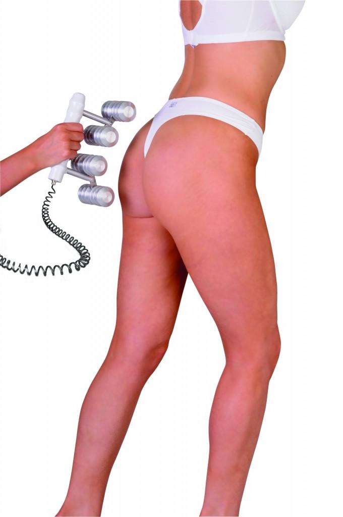 ECM-Cellulite treatment